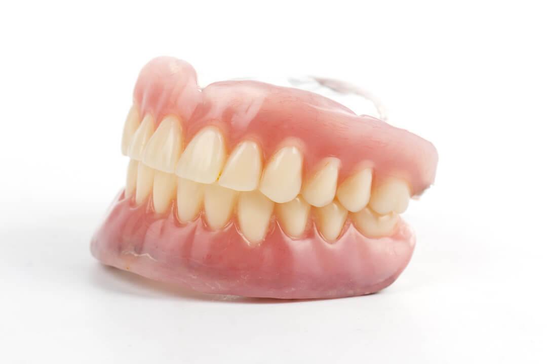 Dentier prothèse complète